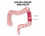 COLON, FIBROID, DIABETES,CANCER HERBS AND CLEANSE